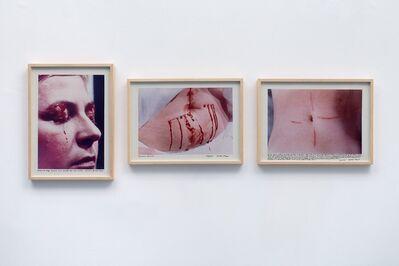 Gina Pane, 'Psyché [Psyche]', 1974