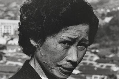 Shomei Tomatsu, 'Hibakusha Tsuyo Kataoka, Nagasaki', 1961-printed 2001