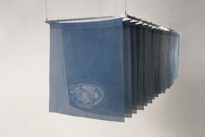 Lynné Bowman Cravens, 'Anaplastic Large Cell Lymphoma', 2014