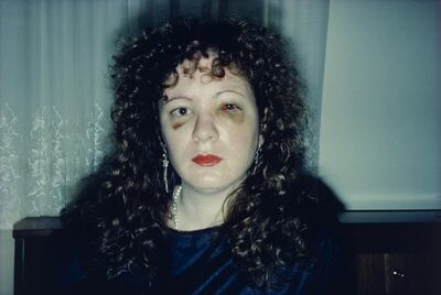 Nan Goldin, 'Nan One Month After Being Battered', 1984