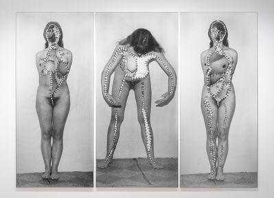 Annegret Soltau, 'Körper-Eingriffe (schwanger) [bodily attack (pregnant)]', 1977-1978