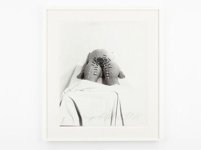 Annegret Soltau, 'Auf dem geburtstisch schwanger I [On the birth table pregnant I]', 1978