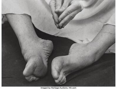 Imogen Cunningham, 'Martha Graham's Feet', 1931