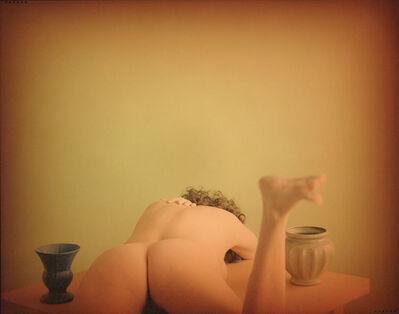 Suzanne Opton, 'Cockeye', 1999/1999