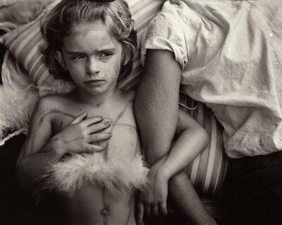 Sally Mann, 'Jessie Bites', 1986