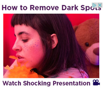 Molly Soda, 'How To Remove Dark Spots ', 2016