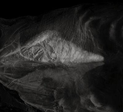 Chan Dick, 'Posterior surface of anterior abdominal wall', 2018