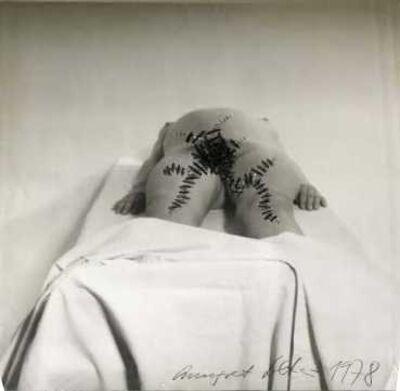 Annegret Soltau, 'Auf dem geburtstisch [schwanger] II [On the birth table pregnant II]', 1978