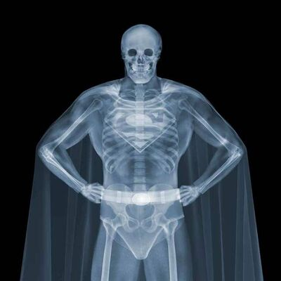 Nick Veasey, 'Superman', 2013