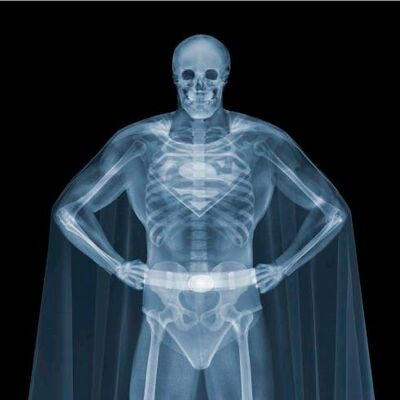 Nick Veasey, 'Superman', 2014