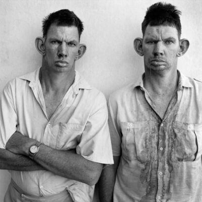 Roger Ballen, 'Dresie and Casie, twins, W Tvl', 1993