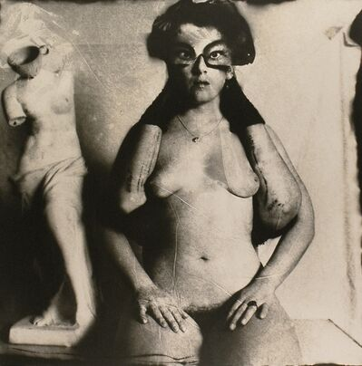Joel-Peter Witkin, 'Arms broken by windows , New Mexico', 1980