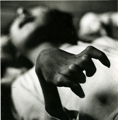 "W. Eugene Smith, '""Iwazu Funaba's Crippled Hand, Victim of the Disease""', 1971"