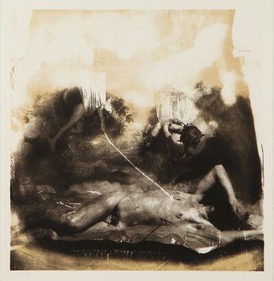 Joel-Peter Witkin, 'Birth of Venus'