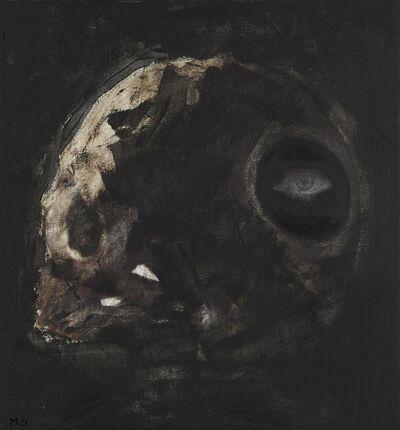 Mikhael Subotzky, 'Evidence of Trephination II', 2019