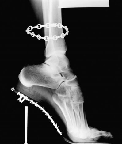 Helmut Newton, 'X-Ray', 1994