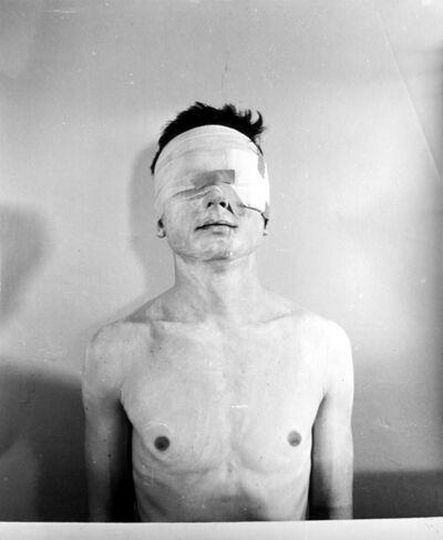 Rudolf Schwarzkogler, '3. Aktion', ca. 1970