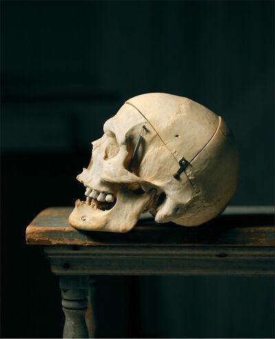 Laurie Rubin, 'Del Close's Skull'