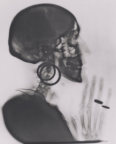 Meret Oppenheim, 'X-ray of My Skull', 1964; printed 1981