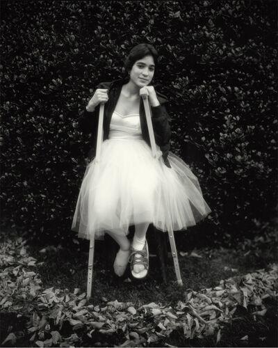 Sally Mann, 'Debbie's Broken Foot', 1983-1985