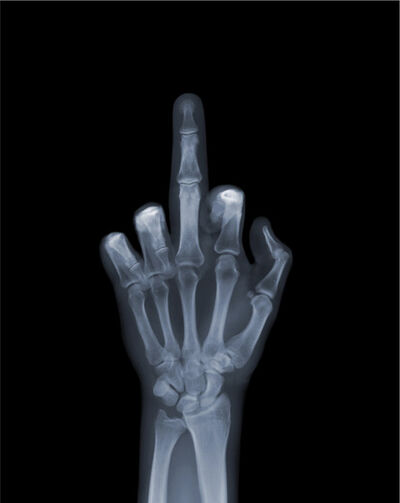 "Nick Veasey, 'Flipping The Bird', 2014  33 x 41 cm  13"" x 16 ½"" Edition 17 of 25 (NVE006)"