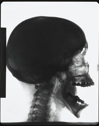 Isa Genzken, 'X-Ray', 1989-2015