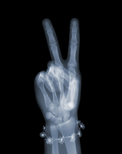 Nick Veasey, 'Peace with Daisies', 2019