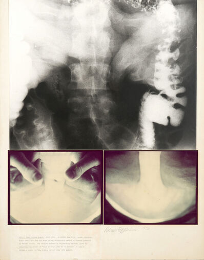 Dennis Oppenheim, 'Stomach X-Ray', 1974