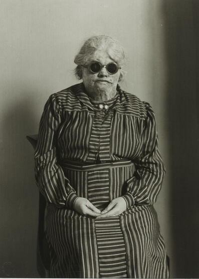 August Sander, 'Explosion Victim', ca. 1930