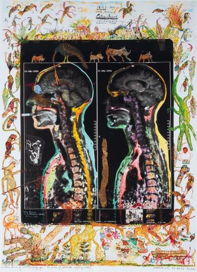 "Peter Beard, '[MRI-IRM] Another kind of photography for ""50 Years of Portraits""', 1998"
