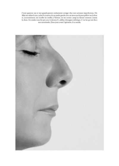 Sophie Calle, 'Le Nez / The Plastic Surgery *'