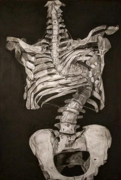 Kelly Blevins, 'Scoliosis', 2016