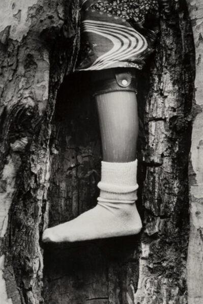 Chester Higgins Jr., 'Prosthetic Leg in Tree', 1995