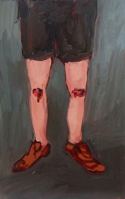 Eduardo Berliner, 'Joelhos [Knees]', 2018