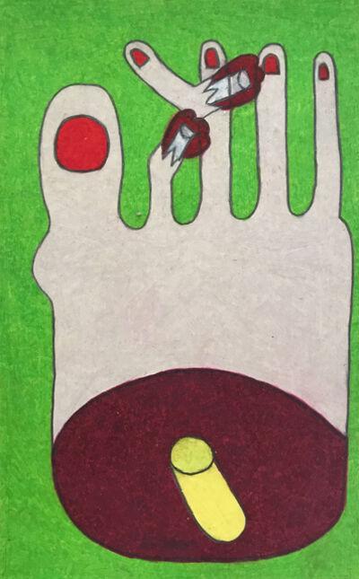 Raquel Albarran, 'Sophia's Toe Amputation', 2018
