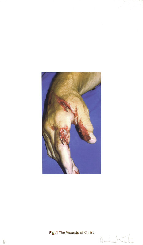 Damien Hirst, 'The Wounds of Christ - Fig.2 - Fig.7', 2005, Photography, Silkscreen on somerset satin, Serge Sorokko Gallery