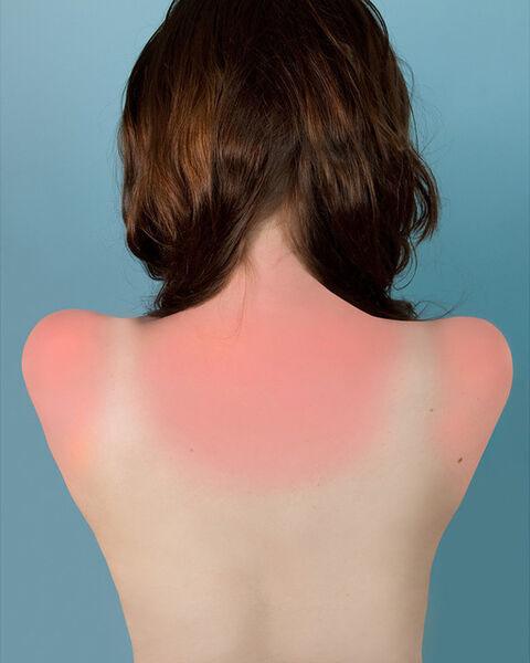 Brea Souders, 'Sunburn in Naples', 2010
