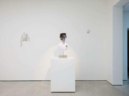 David Altmejd: The Vibrating Man, installation view