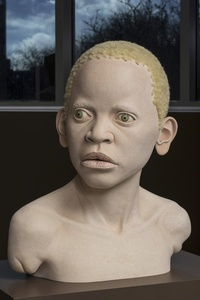 AFRICAN CHILD WITH ALBINISM 2