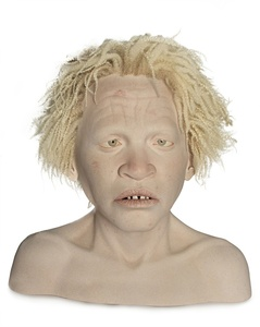 AFRICAN TEEN WITH ALBINISM