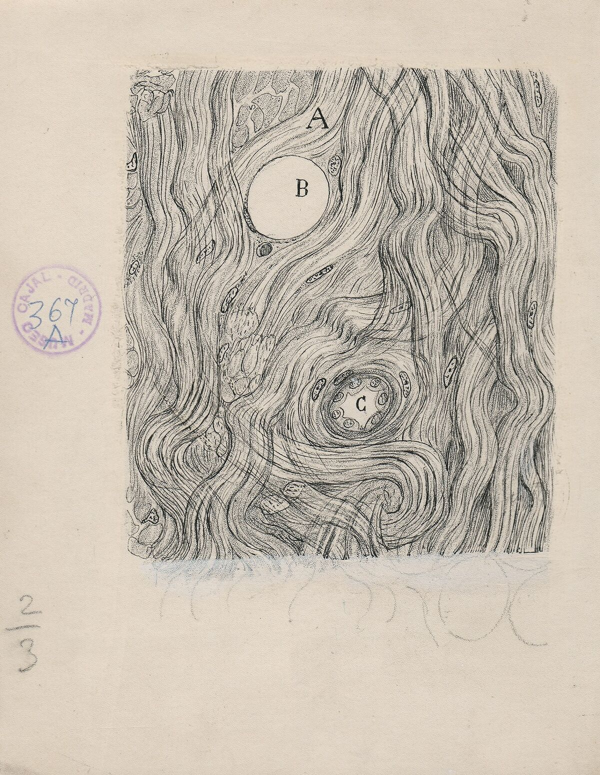 Santiago Ramón y Cajal, Tumor cells of the covering membranes of the brain, 1890. Courtesy of Cajal Institute (CSIC), Madrid.