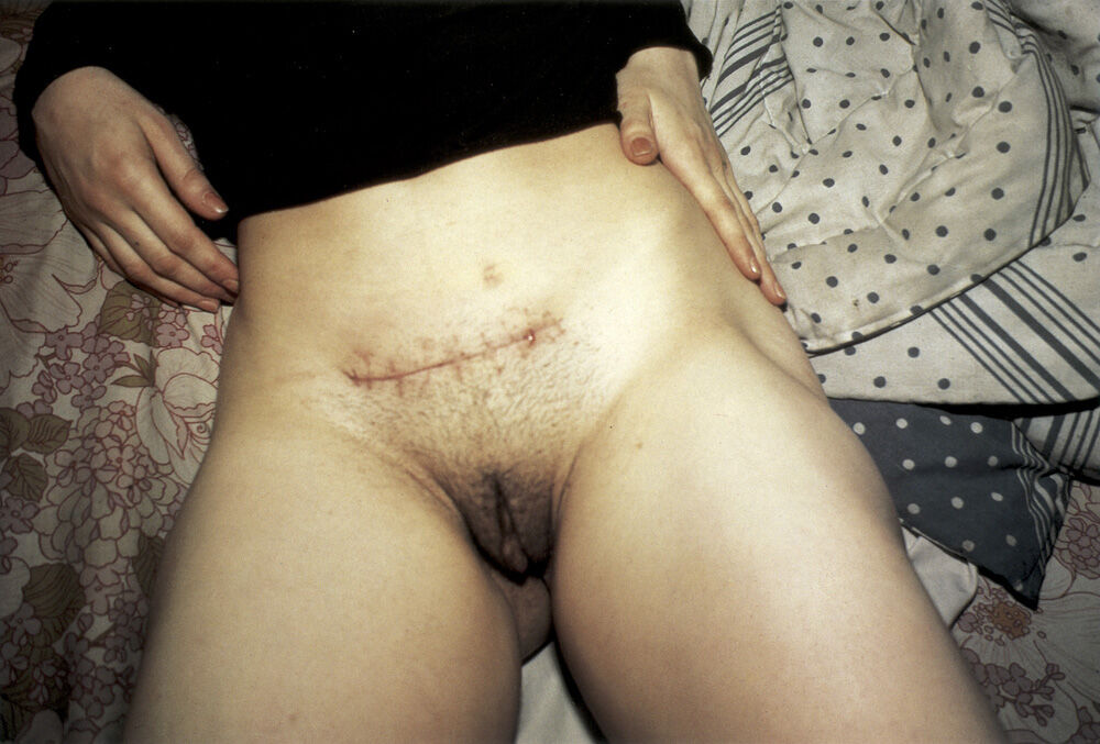Nan Goldin, Ectopic pregnancy scar, NYC, 1980. ©​ Nan Goldin. Courtesy of Matthew Marks Gallery.