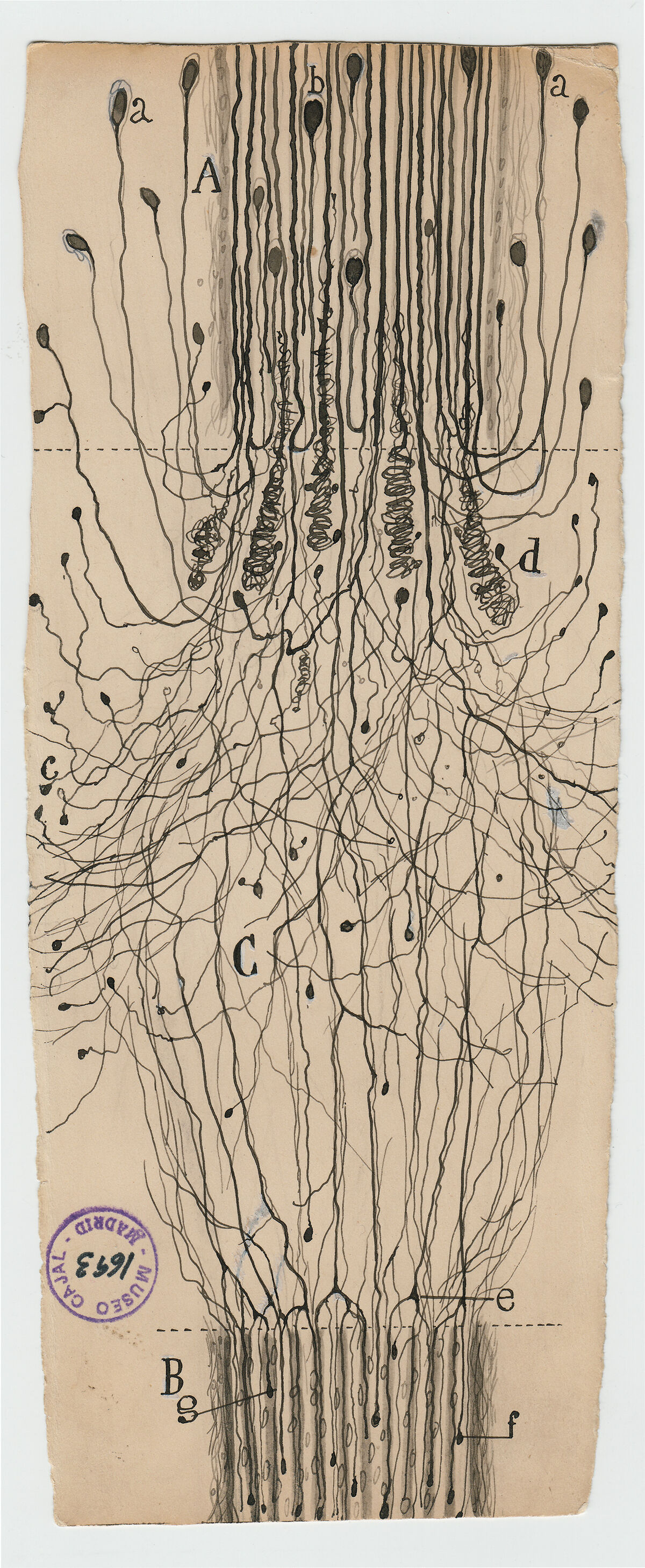 Santiago Ramón y Cajal, A cut nerve outside the spinal cord, 1913. Courtesy of Cajal Institute (CSIC), Madrid.