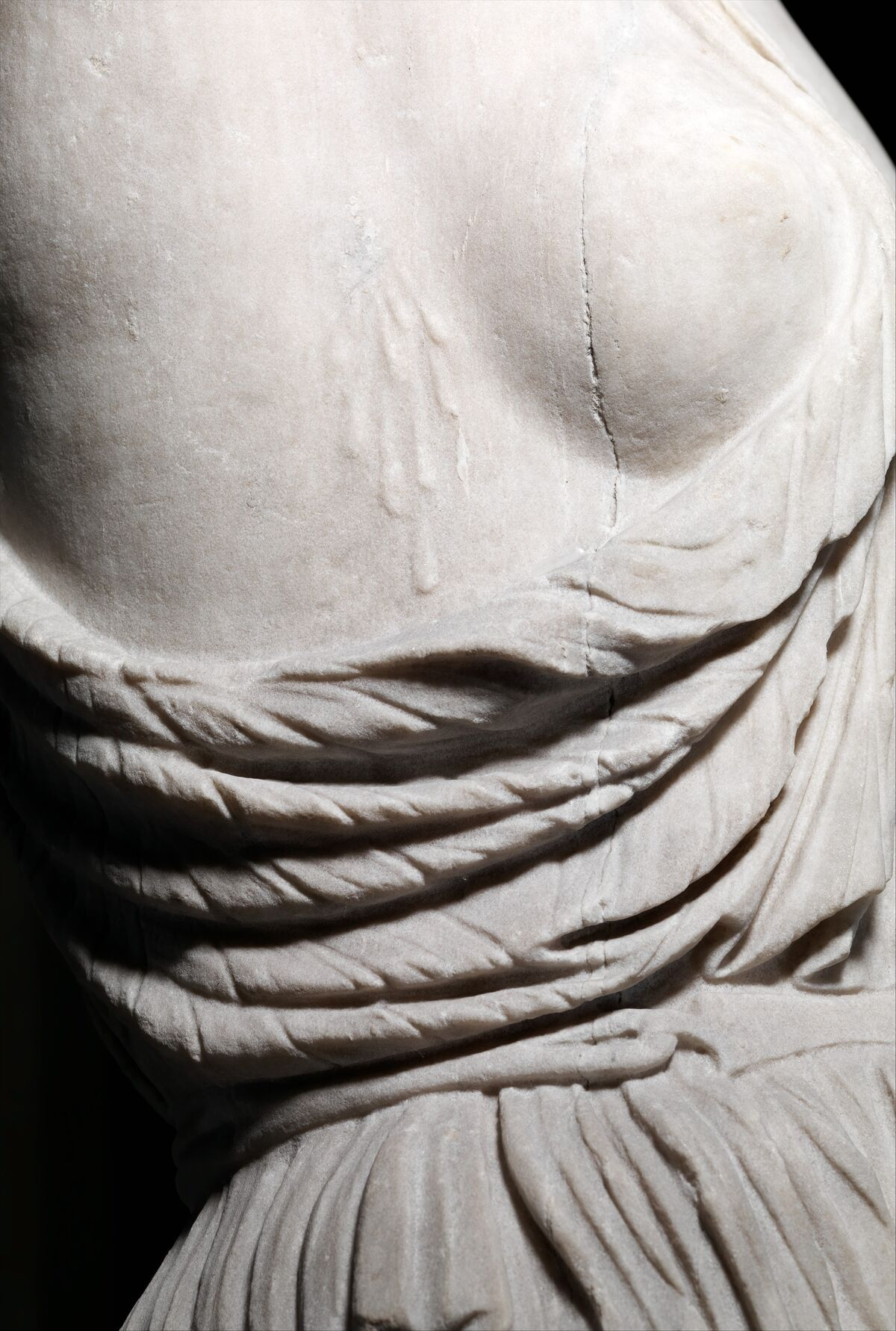 Detail of Marble statue of a wounded Amazon, 1st–2nd century A.D. Courtesy of the Metropolitan Museum of Art.