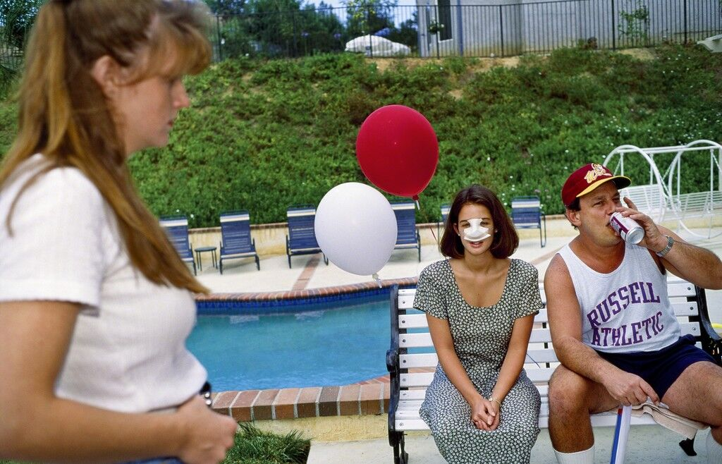 Lindsey, 18, at a Fourth of July party three days after her nose job, Calabasas, California