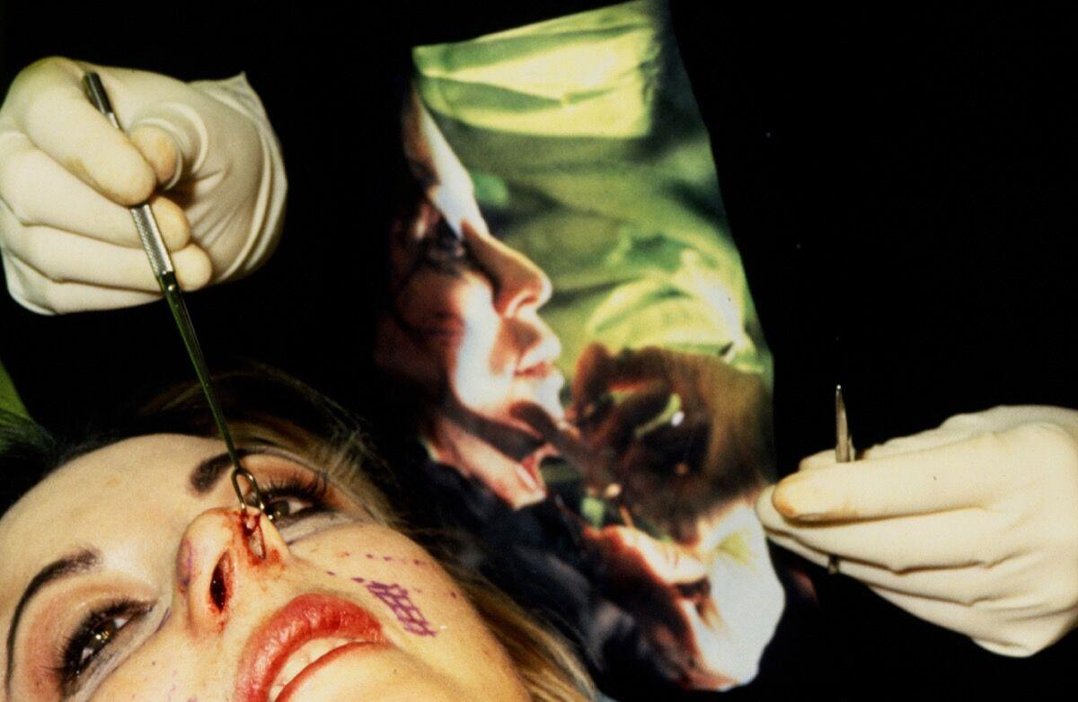 ORLAN, Omniprésence Smile of pleasure, 7th Surgery-performance. Courtesy of La Plaque Tournante.